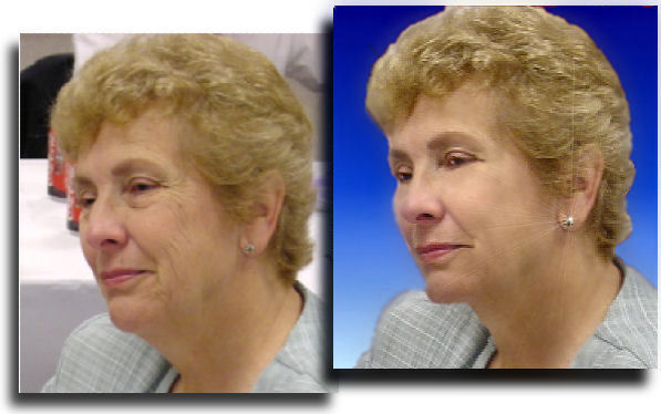 Photo Restoration, Restore and Retouch - full facial with chin tuck - Photo Restoration by SmileDogProductions.com