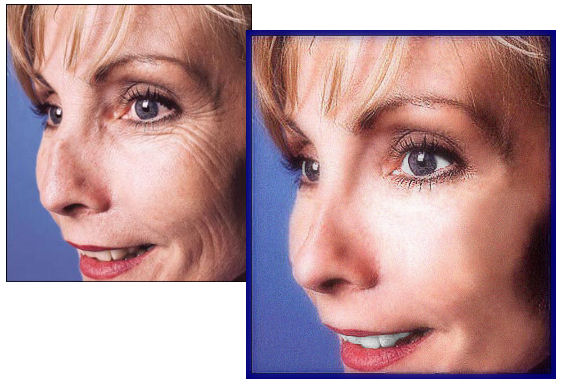 Photo Restoration, Restore and 